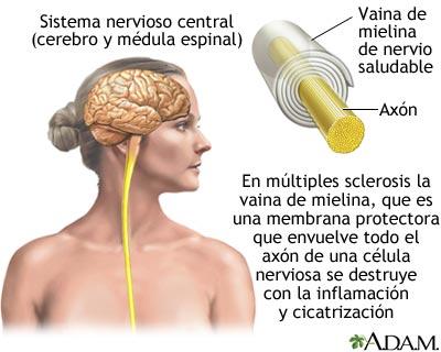 La esclerosis múltiple (EM) afecta más a las mujeres